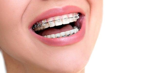 ortodonta Stalowa Wola